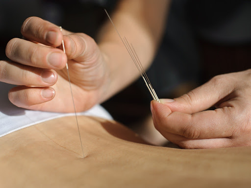 Follow Up Acupuncture Treatments