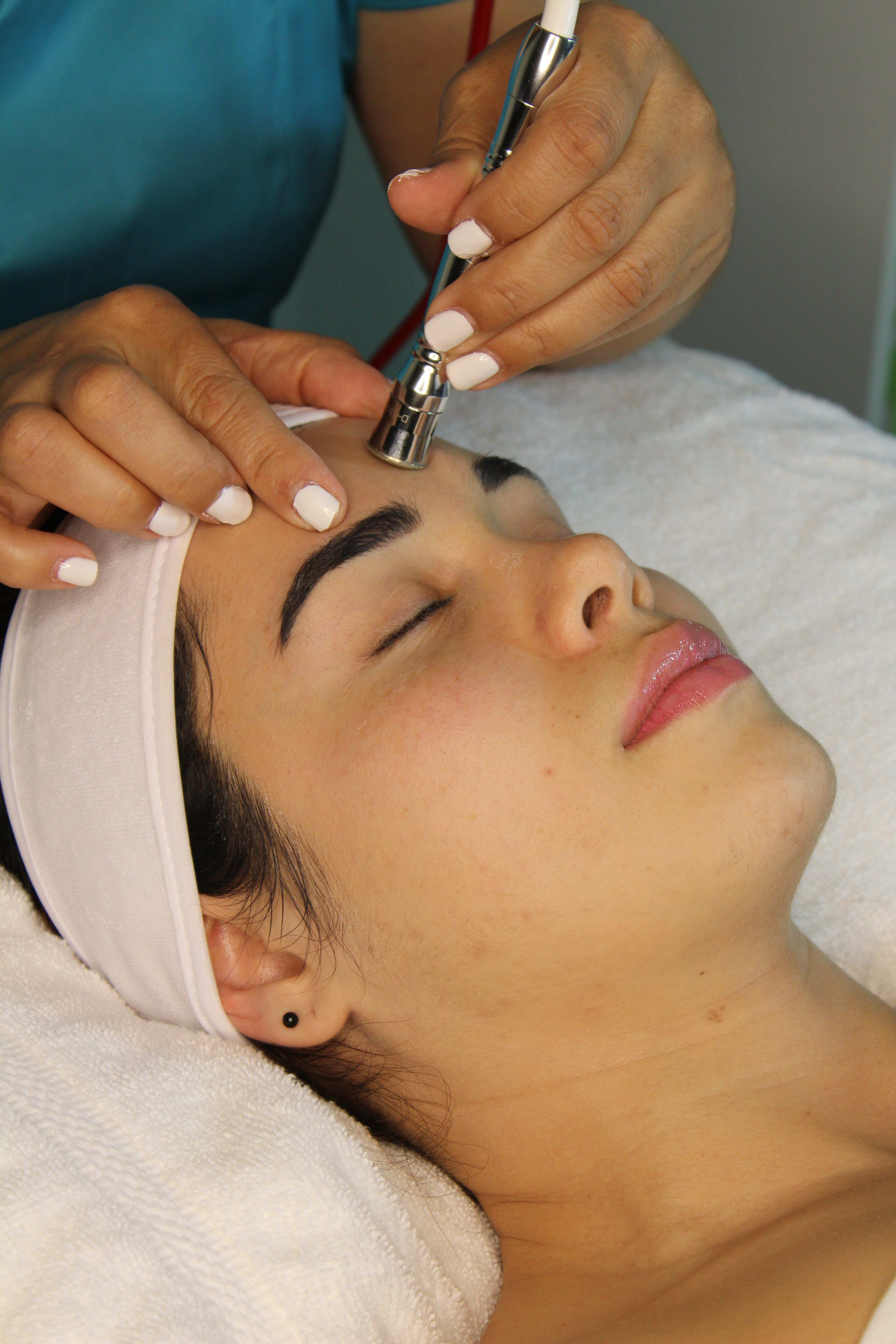Microdermabrasion (Face)