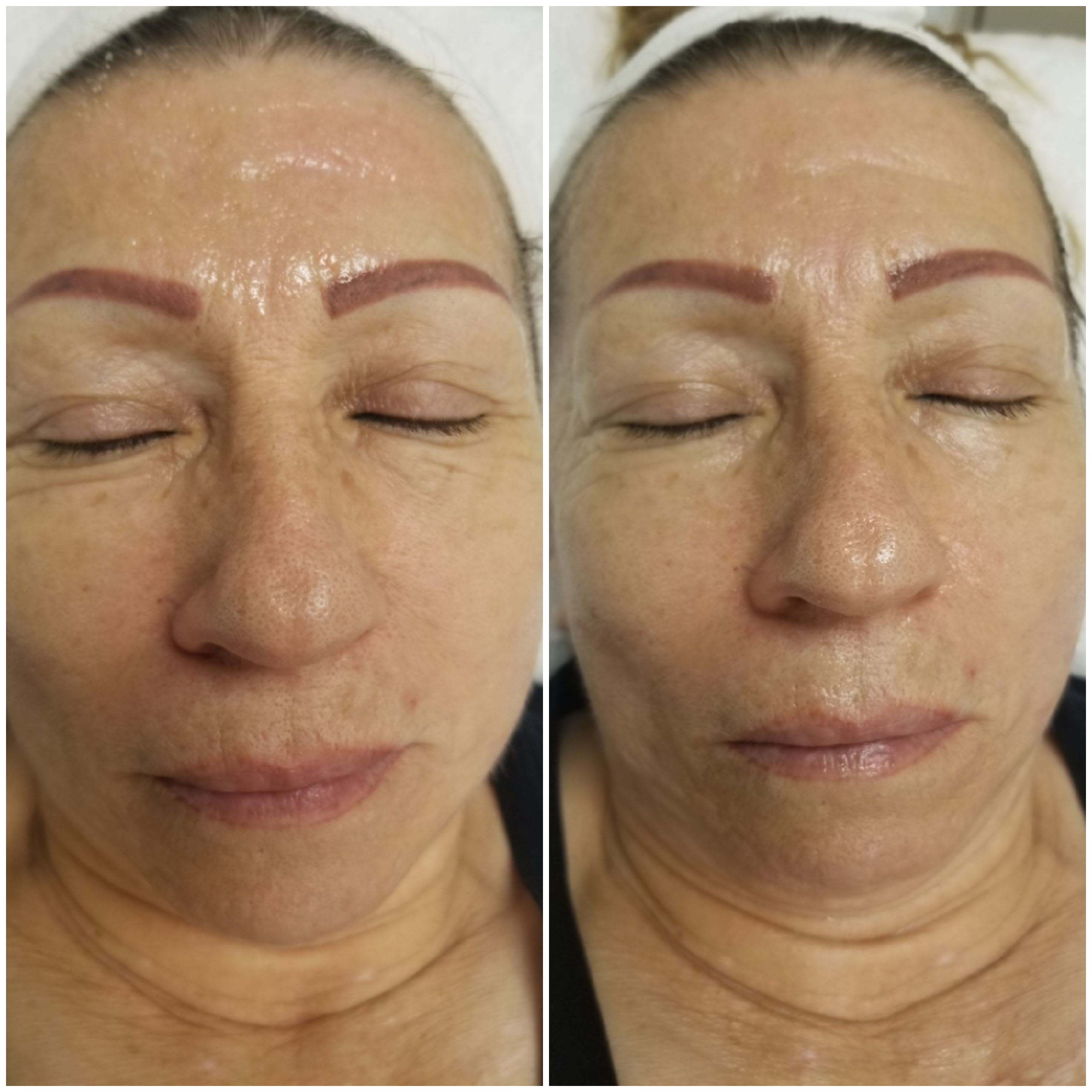 Radiofrequency Face Lift