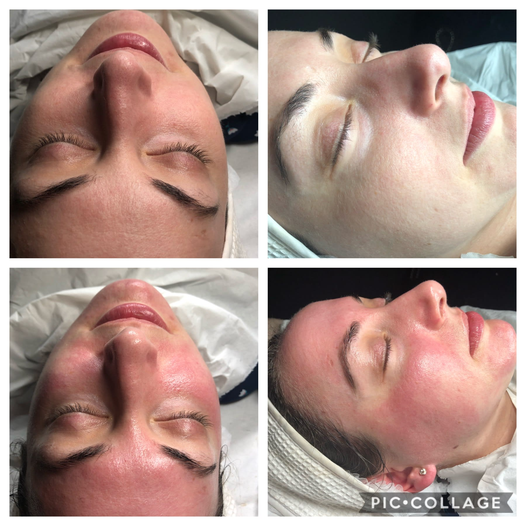 Microneedling Face Therapy